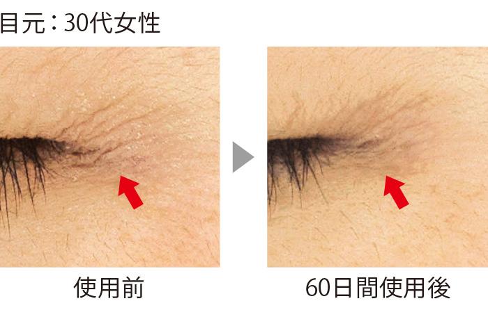 セラムバイタル配合のクリームを目尻のシワに使用した結果。60日間でシワが短く、浅くなり、本数も激減した。シワ以外の部分の肌もハリ、ツヤがアップしている点に注目。