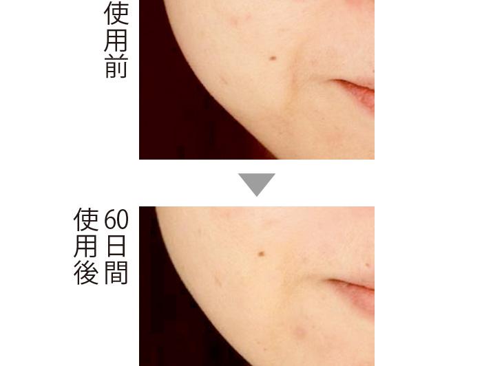 セラムバイタル配合のクリームを2カ月間使用したところ、ほうれい線が目立たなくなったことが確認された。肌のキメも整ってきた。