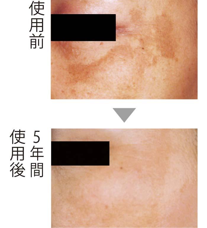 コウジ酸によるケアで、こめかみの大きなシミが薄くなったのみならず、肌に透明感とハリが。コウジ酸の抗糖化、抗酸化作用によるとみられる。