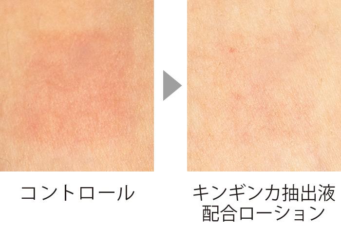 紫外線を浴びる前にキンギンカ抽出液を塗っておくと、紫外線を浴びても赤くならない。肌の炎症を45%抑制することができる。 (三省製薬調べ)