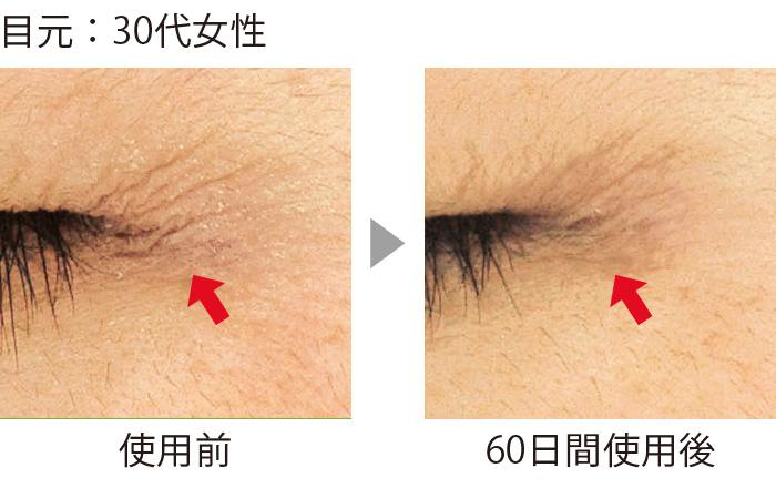 セラムバイタル配合のクリームを目尻のシワに使用した結果。60日間でシワが短く、浅くなり、本数も減少した。目元の影が薄くなると、顔全体の印象も変わる。(三省製薬調べ)