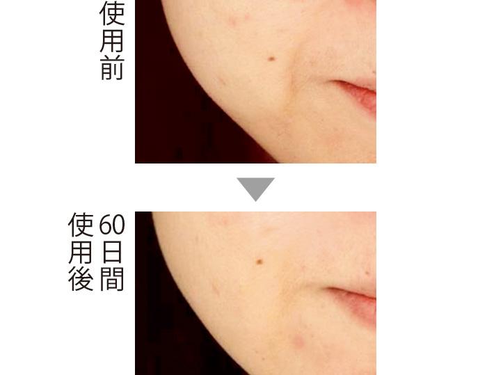 セラムバイタル配合のクリームを60日間使用。ほうれい線が目立たなくなった。肌全体にハリが出たため、フェイスラインにも変化が。 (三省製薬調べ)