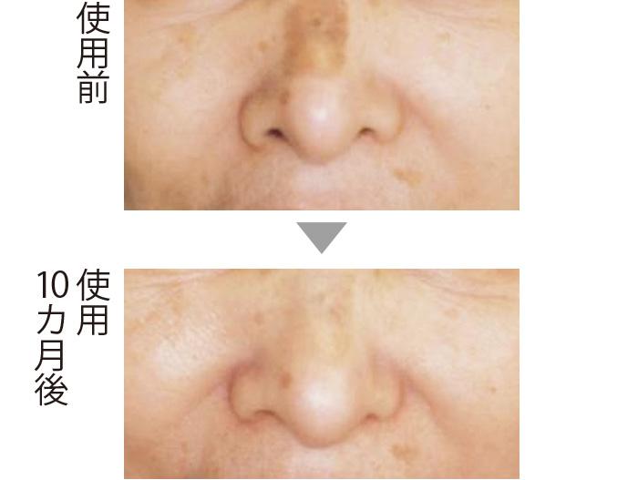 鼻筋にできた紫外線による大きなシミ。コウジ酸でケアすることにより、10カ月後にかなり薄くなった。肌全体の透明感とツヤがアップしていることもわかる。(三省製薬調べ)