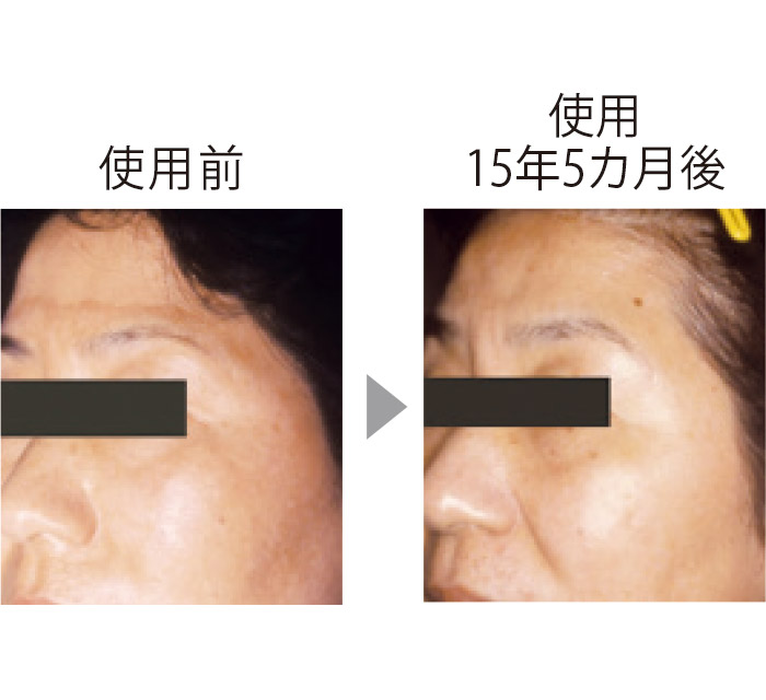 皮膚科での試験。額から頬に広がっていたシミがほとんどわからなくなった。肌全体に透明感が出てツヤも。抗炎症による美肌作用の証明。