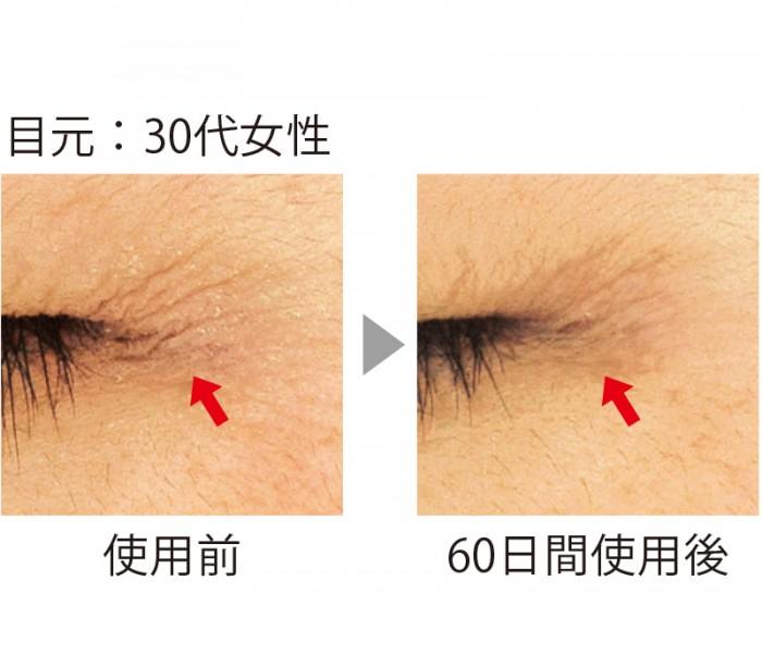 セラムバイタル配合のクリームを目尻に使用。60日間の使用でシワが短く、浅くなり、本数も減少した。目元の影が薄くなると、顔全体の印象も明るくなる。(三省製薬調べ)