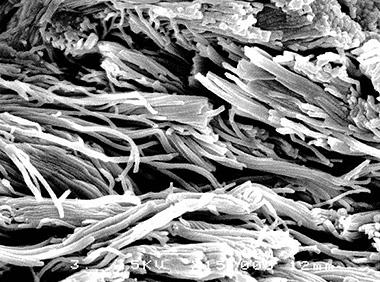 セラムバイタルによりコラーゲンが修復された皮膚