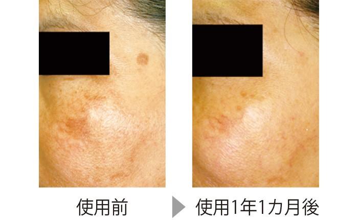 目立つシミの部分にコウジ酸配合製剤を使った。頬のシミもだが、こめかみの丸いシミはほとんどわからなくなっている。