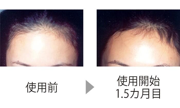 額が後退し、地肌が透けていたが、CTP配合の育毛剤を使い、1.5カ月後には髪が生えている面積が増え、毛量も増加(三省製薬調べ)。