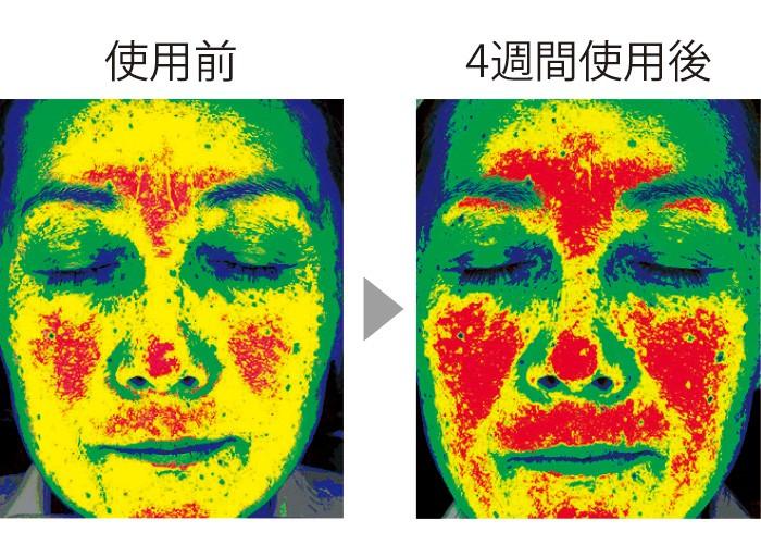 セラムバイタル配合のクリームを4週間使用することで、顔の高い部分を表す赤い色が増え、顔全体(特に頬)のハリが出て、リフトアップされた。(三省製薬調べ)