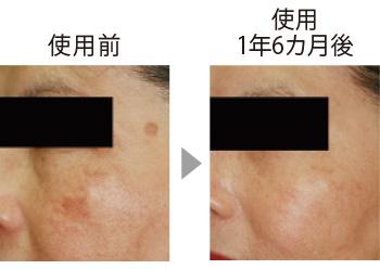 皮膚科での試験。シミにコウジ酸配合クリームを使用。短期間で頬とこめかみのシミが目立たなくなった。(三省製薬調べ)