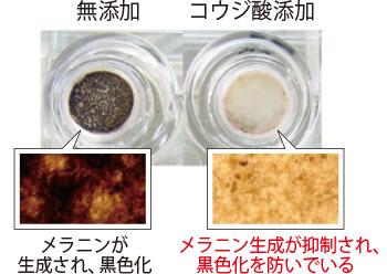 メラノサイトを含む皮膚モデルの培養実験。コウジ酸を添加したほうは、メラニンの生成が抑えられている。(三省製薬調べ)