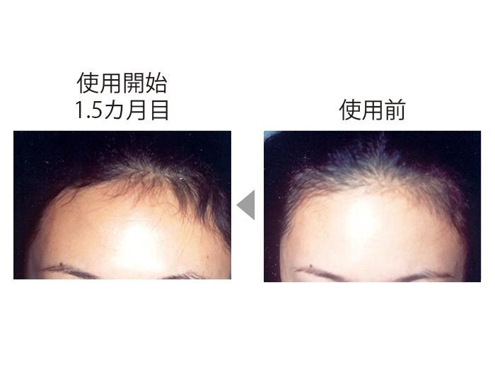 額が後退し、地肌が透けていたが、CTP配合の育毛剤を使い、1.5カ月後には髪が生えている面積が増え、毛量も増加。(三省製薬調べ)