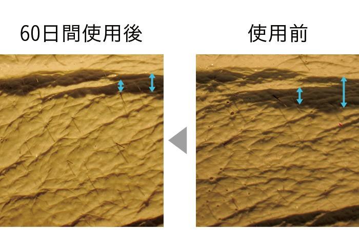 セラムバイタル配合のクリームを60日間使用した肌のレプリカ。シワの幅が狭く、浅くなっている。肌全体もふっくらとなめらかに。 (三省製薬調べ)