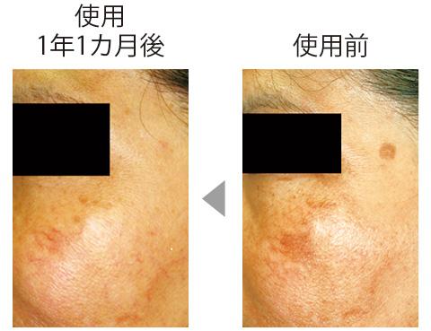 目立つシミの部分にコウジ酸配合製剤を使った。頬のシミもだが、こめかみの丸いシミはほとんどわからなくなっている。(三省製薬調べ)