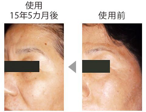 額から頬に広がっていたシミが目立たなくなっただけでなく、肌全体に透明感が出てツヤも。総合的な美肌作用の証明。 (三省製薬調べ)