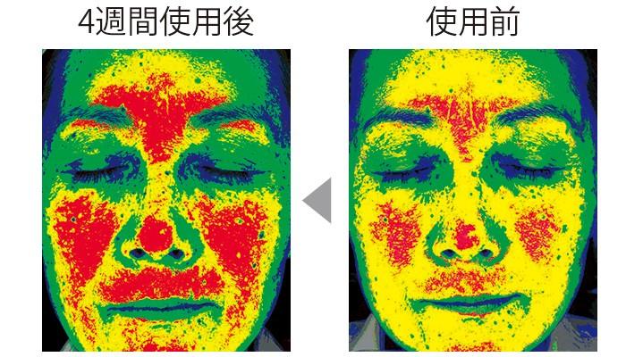 セラムバイタル配合のクリームを4週間使用することで、顔の高い部分を示す赤い色が増え、顔全体(特に頬)のハリが出て、リフトアップされた。(三省製薬調べ)