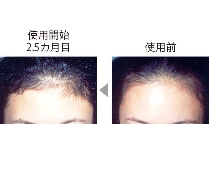 額が後退し、地肌が透けていたが、CTP配合の育毛剤を使い、2.5カ月後には髪が生えている面積が増え、毛量も増加。 (三省製薬調べ)