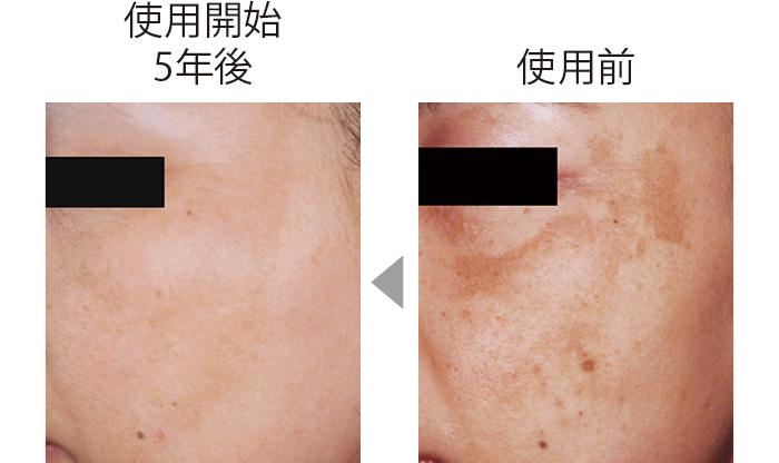 頬に広がっていたシミが目立たなくなっただけでなく、肌全体に透明感が出てツヤも。コウジ酸の総合的な美肌作用の証明。 (三省製薬調べ)
